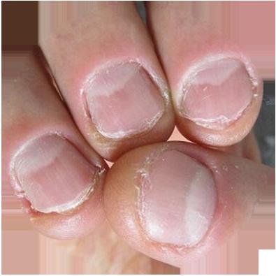 Cursus nagels nagelbijter Rotterdam